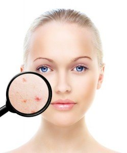 ACNE TREATMENTS, DIDCOT, WANTAGE