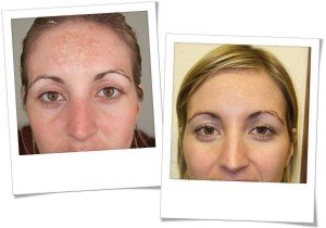 SkinBase Microdermabrasion before & after sun damage