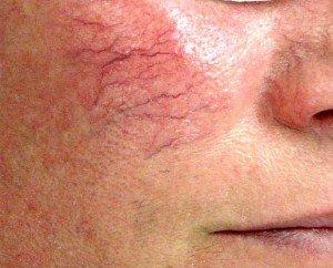 thread vein treatment, didcot, wantage beauty salons