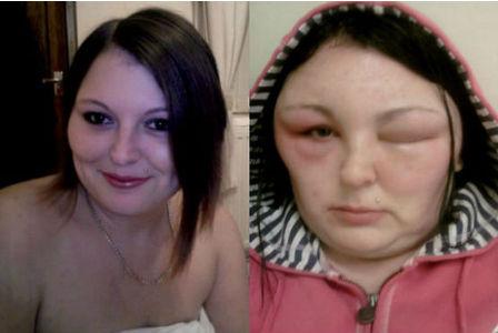 Allergicbeforeandafter
