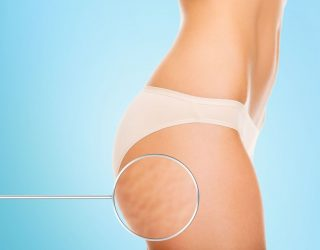 What can we do about cellulite?
