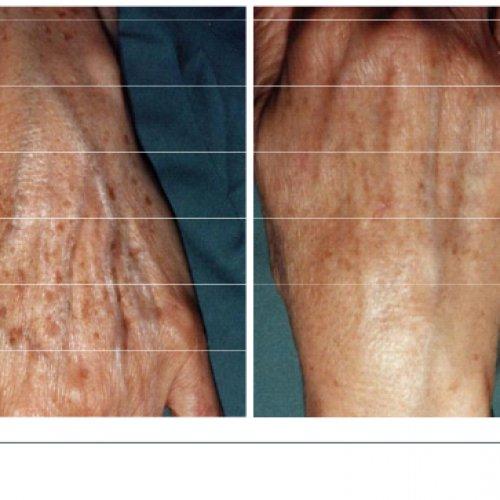 ipl-age-spot-treatments