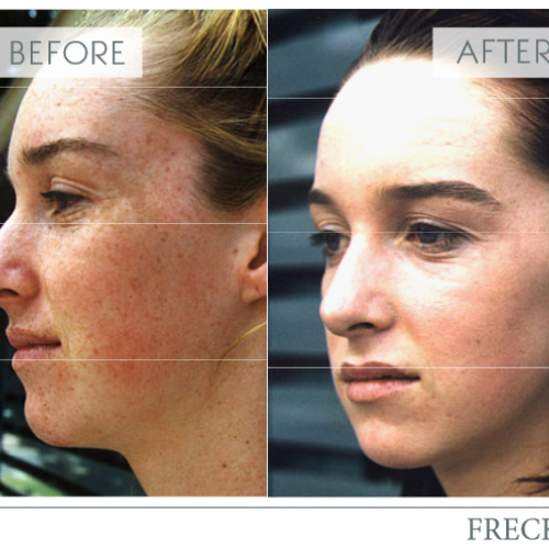 ipl-freckle-treatment