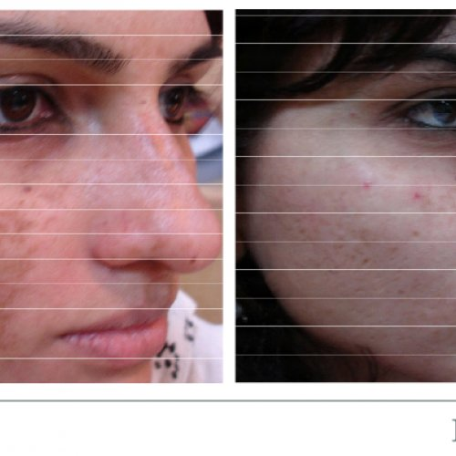 ipl-improved-skin-tone