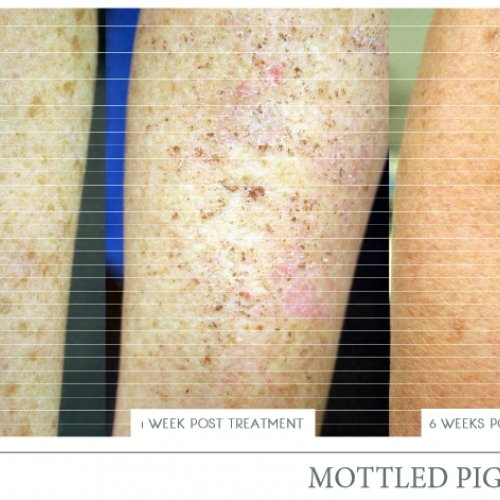 ipl-skin-pigmentation-before-and-after