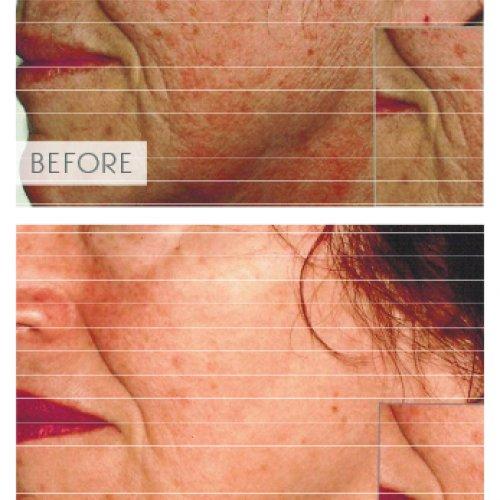 ipl-skin-pigmentation