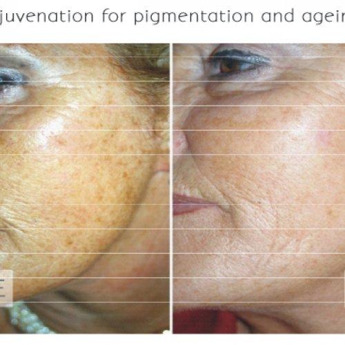 ipl-skin-rejuvenation