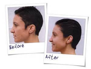 SkinBase-Microdermabrasion-before-and-after