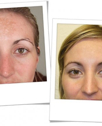 SkinBase-Microdermabrasion-before-after-sun-damage